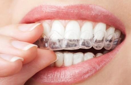 שיטות ליישור שיניים