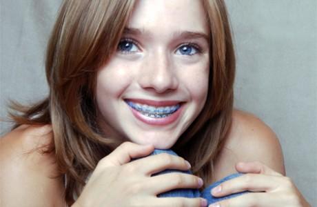 יישור שיניים לילדים ובני נוער